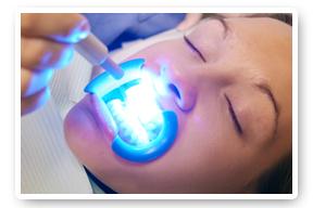 brilliantsmile-tandblekning-